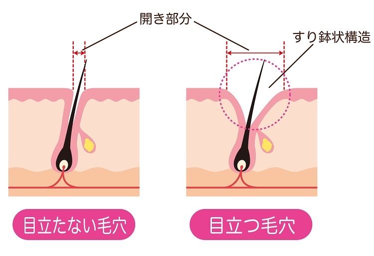 毛穴の開きは肌のたるみが原因